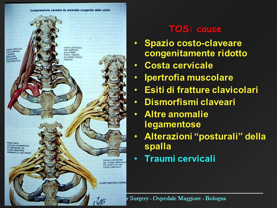 Operative Unit of Vascular Surgery - Ospedale Maggiore - Bologna TOS: cause Spazio costo-claveare congenitamente ridotto Costa cervicale Ipertrofia mu