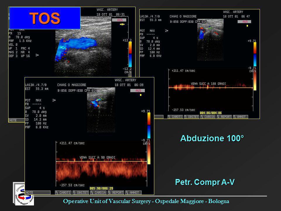 Operative Unit of Vascular Surgery - Ospedale Maggiore - Bologna Abduzione 100° Petr. Compr A-V TOS