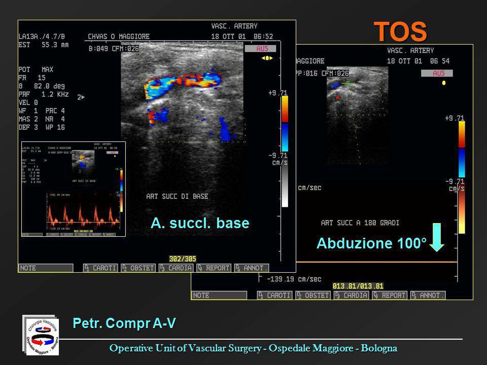 Operative Unit of Vascular Surgery - Ospedale Maggiore - Bologna A. succl. base Abduzione 100° Petr. Compr A-V TOS