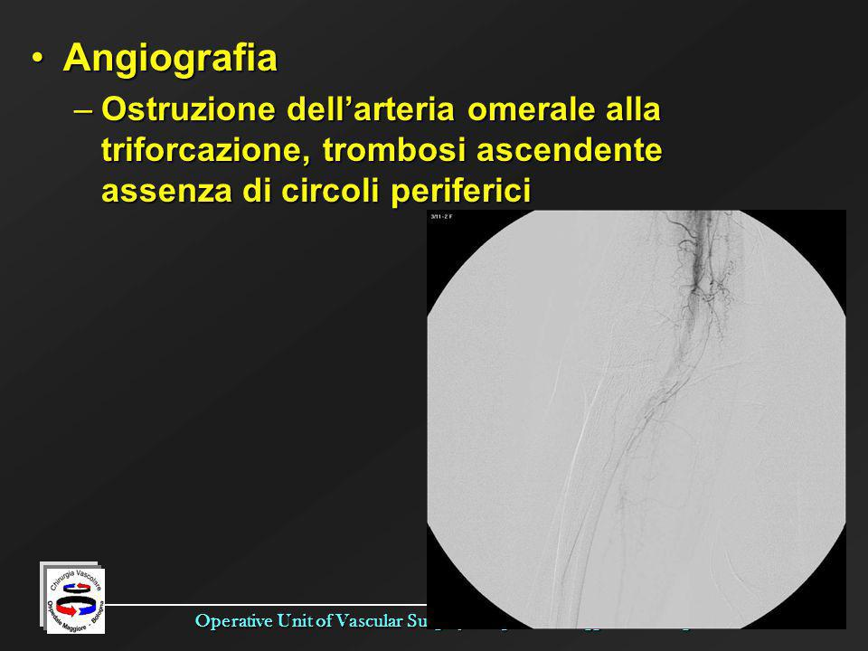 Operative Unit of Vascular Surgery - Ospedale Maggiore - Bologna AngiografiaAngiografia –Ostruzione dellarteria omerale alla triforcazione, trombosi a
