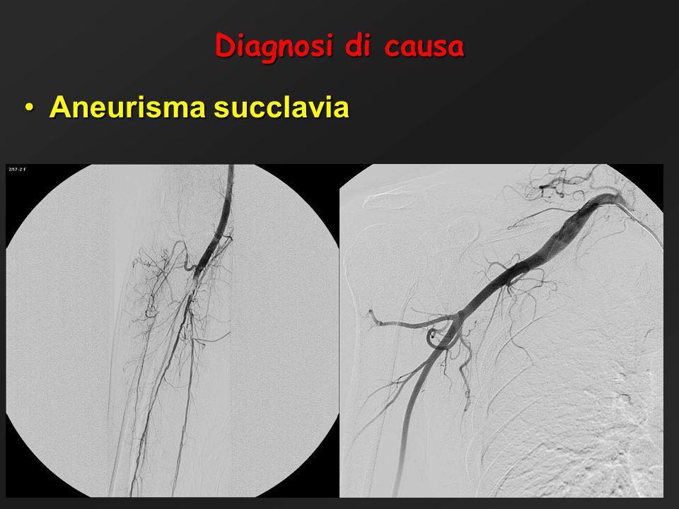 Operative Unit of Vascular Surgery - Ospedale Maggiore - Bologna Diagnosi di causa Aneurisma succlaviaAneurisma succlavia