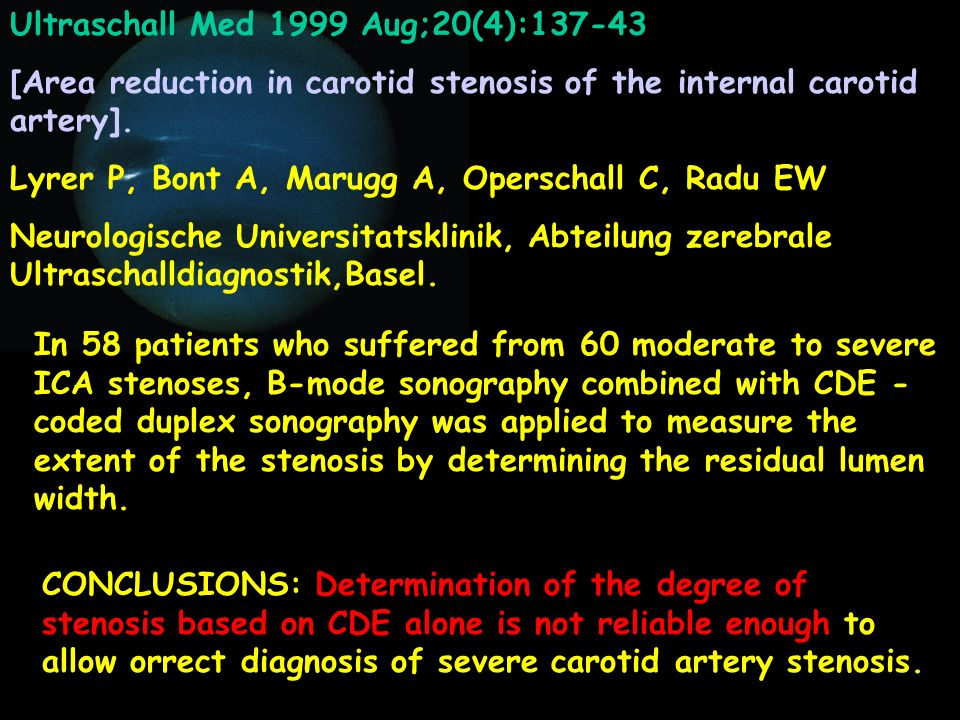 Ultraschall Med 1999 Aug;20(4):137-43 [Area reduction in carotid stenosis of the internal carotid artery]. Lyrer P, Bont A, Marugg A, Operschall C, Ra