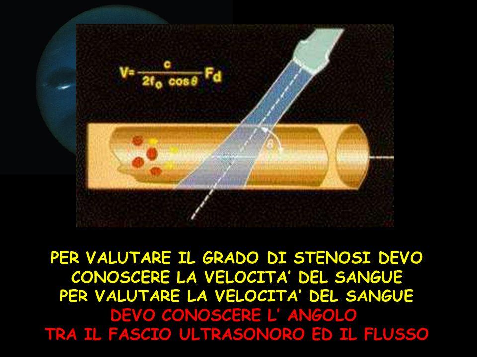 L angolo di insonazione è l angolo tra il trasduttore (la sonda) e le strutture da esplorare, nel nostro caso i vasi.