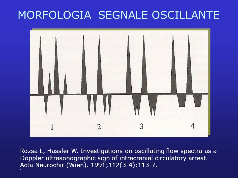 MORFOLOGIA SEGNALE OSCILLANTE Rozsa L, Hassler W. Investigations on oscillating flow spectra as a Doppler ultrasonographic sign of intracranial circul