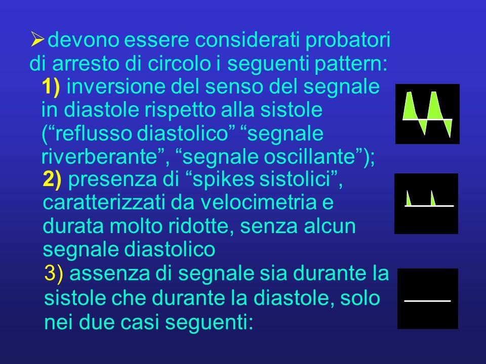 1) inversione del senso del segnale in diastole rispetto alla sistole (reflusso diastolico segnale riverberante, segnale oscillante); devono essere co