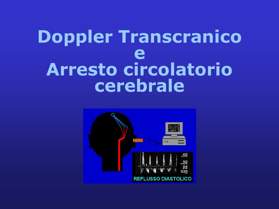 Doppler Transcranico e Arresto circolatorio cerebrale
