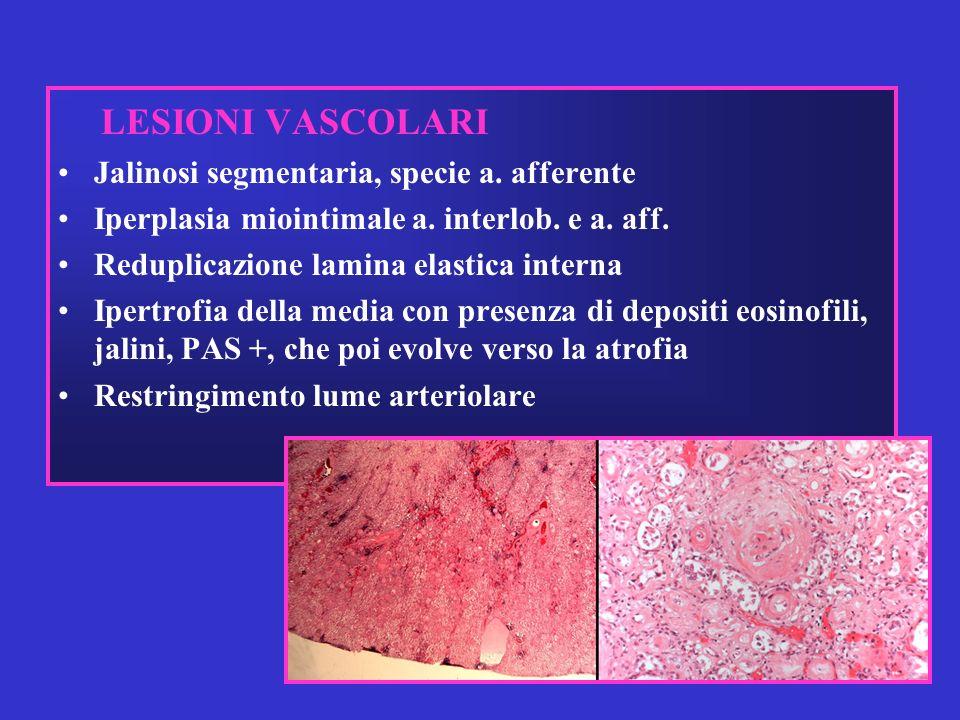 LESIONI VASCOLARI Jalinosi segmentaria, specie a. afferente Iperplasia miointimale a. interlob. e a. aff. Reduplicazione lamina elastica interna Ipert