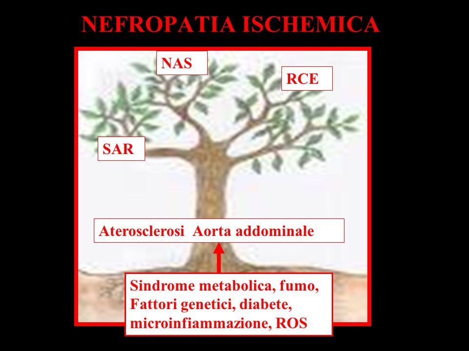 NEFROPATIA ISCHEMICA SAR NAS RCE Aterosclerosi Aorta addominale Sindrome metabolica, fumo, Fattori genetici, diabete, microinfiammazione, ROS