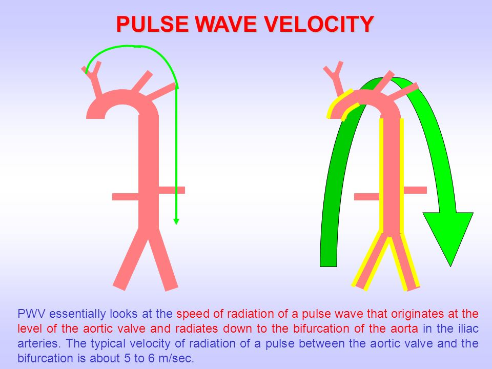 PULSE WAVE VELOCITY PWV essentially looks at the speed of radiation of a pulse wave that originates at the level of the aortic valve and radiates down