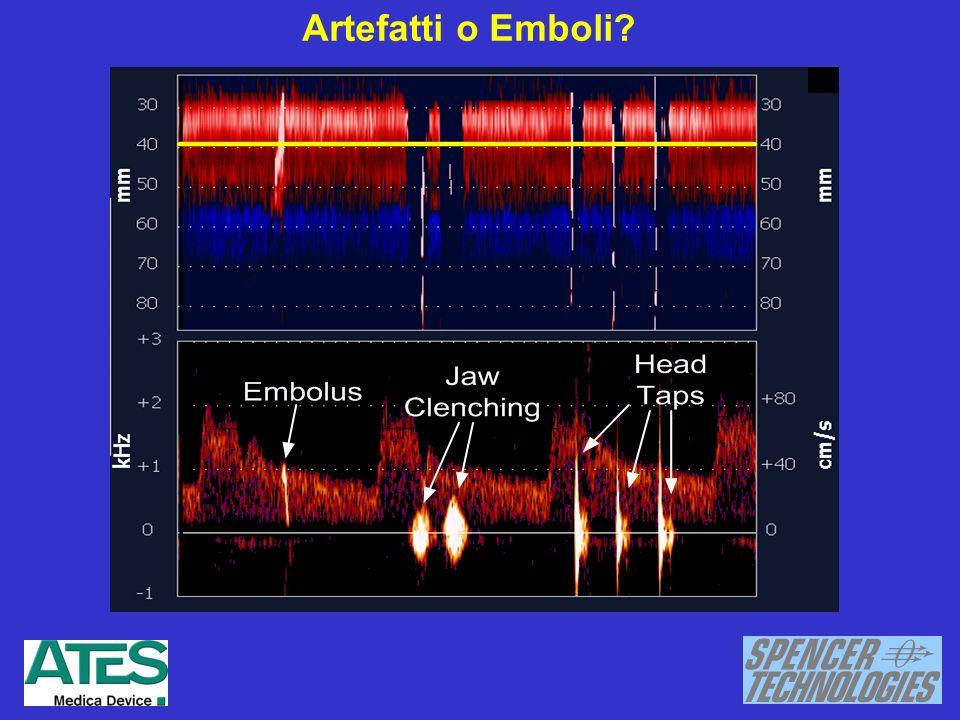Artefatti o Emboli?