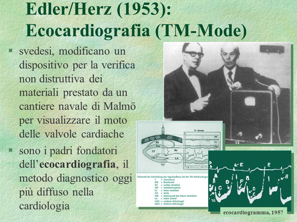 20 Edler/Herz (1953): Ecocardiografia (TM-Mode) §svedesi, modificano un dispositivo per la verifica non distruttiva dei materiali prestato da un canti