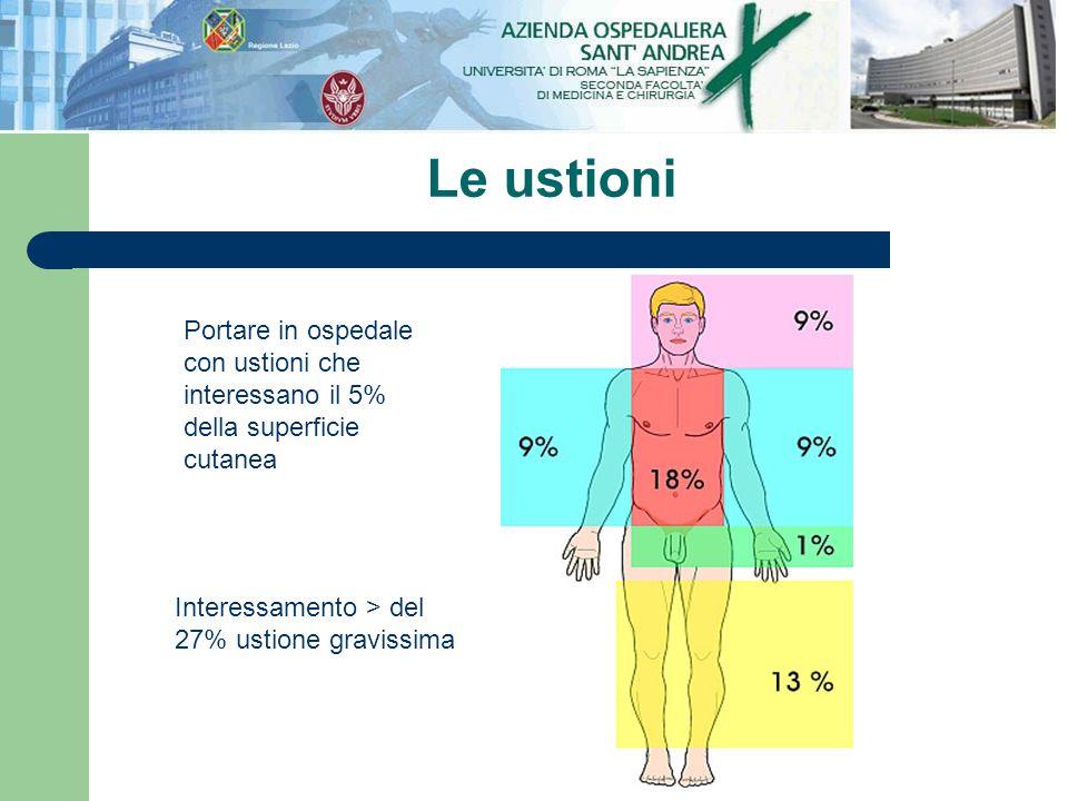 Le ustioni Interessamento > del 27% ustione gravissima Portare in ospedale con ustioni che interessano il 5% della superficie cutanea