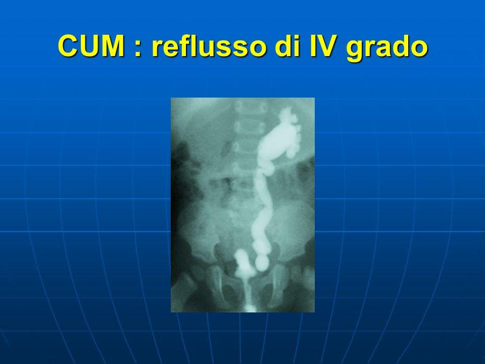 CUM : reflusso di IV grado