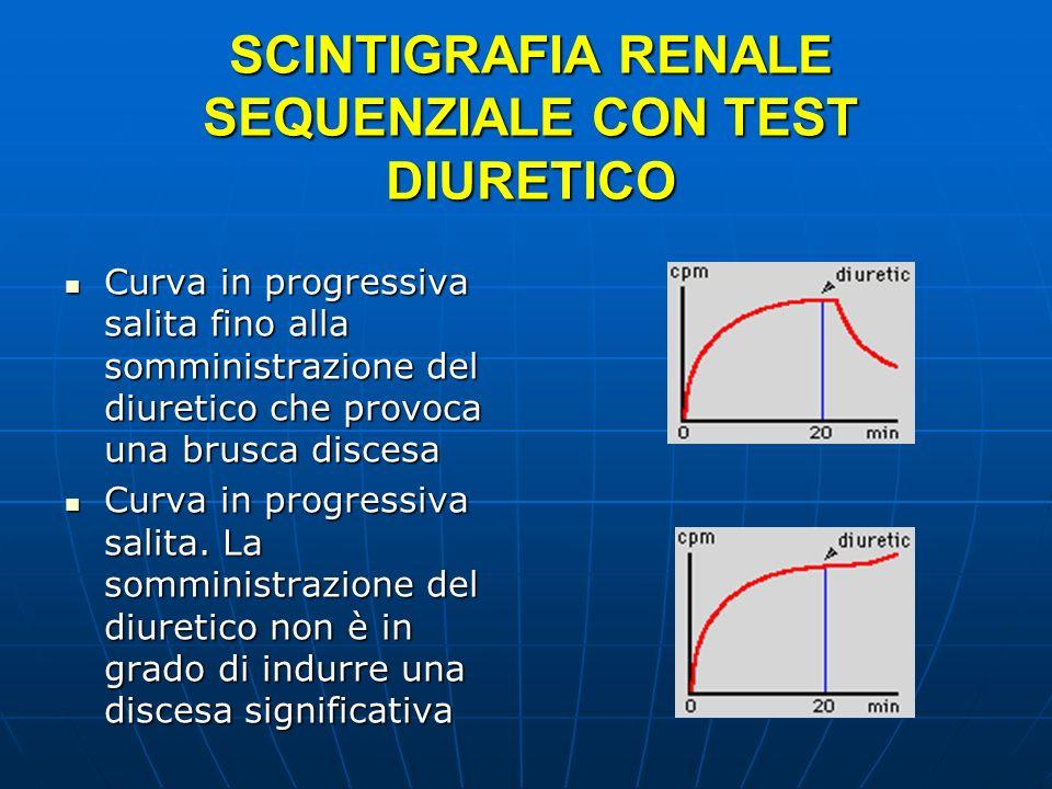 SCINTIGRAFIA RENALE SEQUENZIALE CON TEST DIURETICO Curva in progressiva salita fino alla somministrazione del diuretico che provoca una brusca discesa