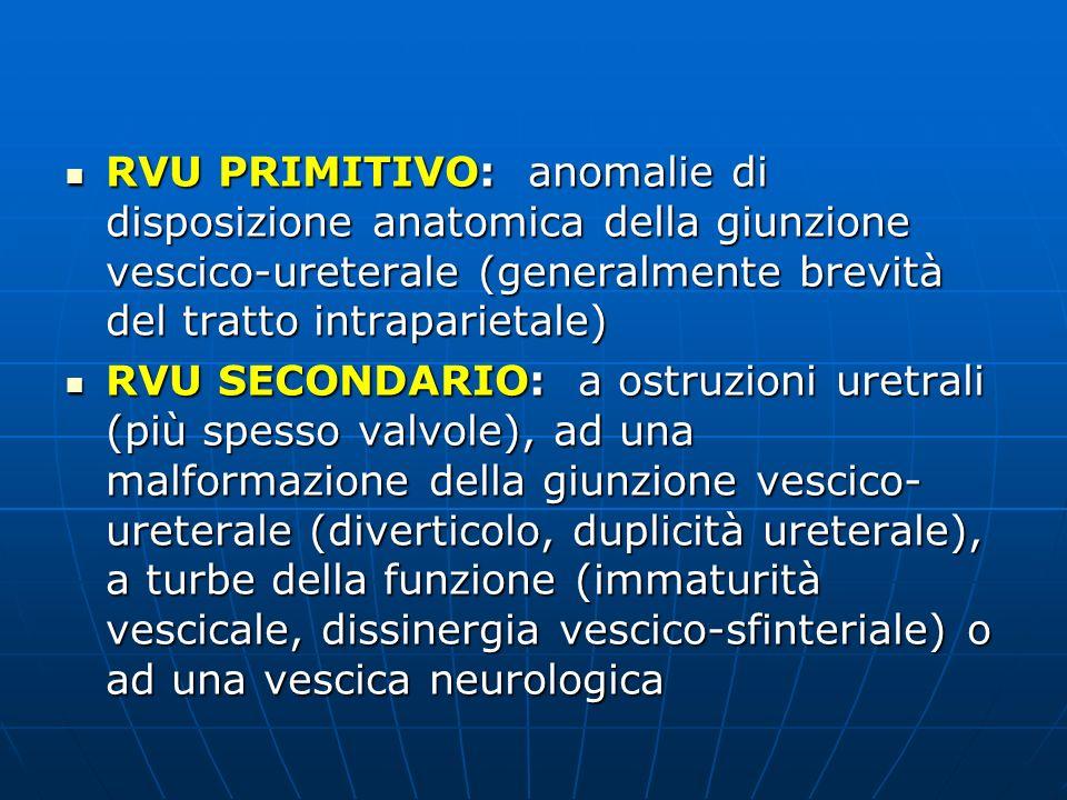 RVU PRIMITIVO: anomalie di disposizione anatomica della giunzione vescico-ureterale (generalmente brevità del tratto intraparietale) RVU PRIMITIVO: an