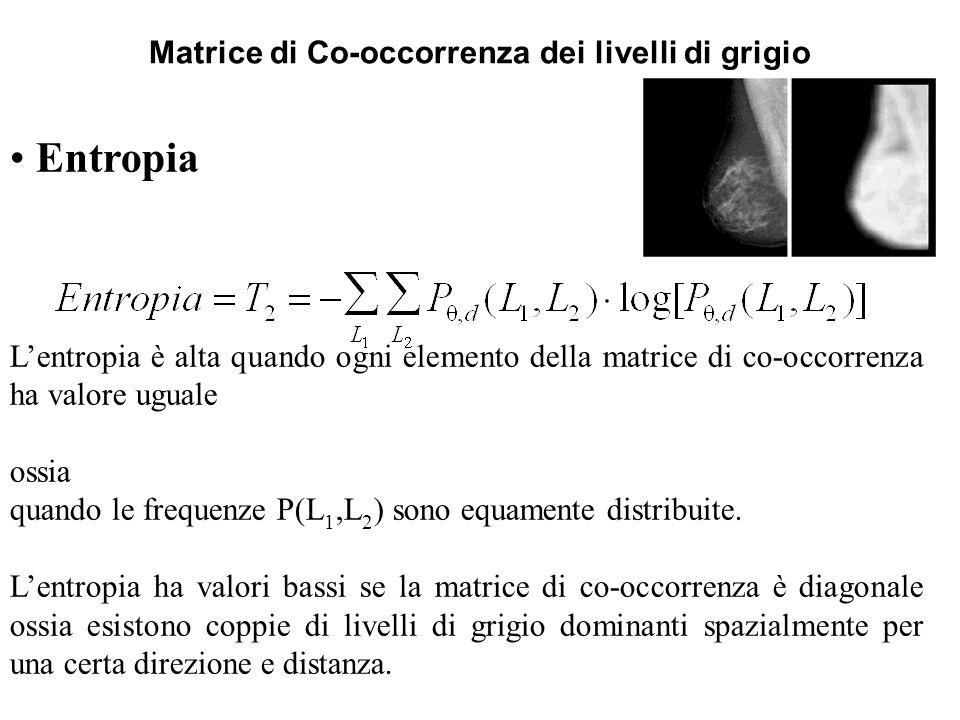 Matrice di Co-occorrenza dei livelli di grigio Entropia Lentropia è alta quando ogni elemento della matrice di co-occorrenza ha valore uguale ossia qu