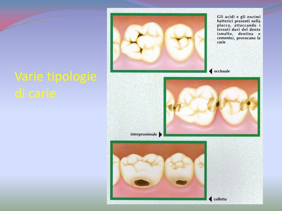 Come si forma la carie? I batteri contenuti nella placca dentaria si servono dei carboidrati fermentabili per formare gli acidi. I carboidrati ferment
