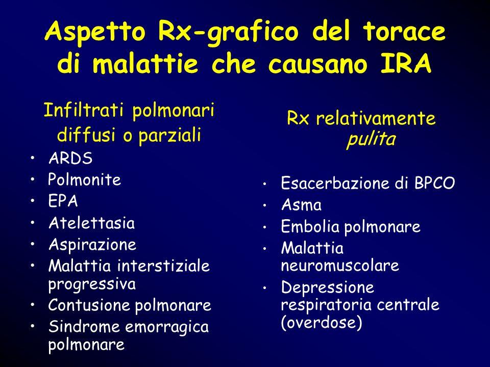 Aspetto Rx-grafico del torace di malattie che causano IRA Infiltrati polmonari diffusi o parziali ARDS Polmonite EPA Atelettasia Aspirazione Malattia