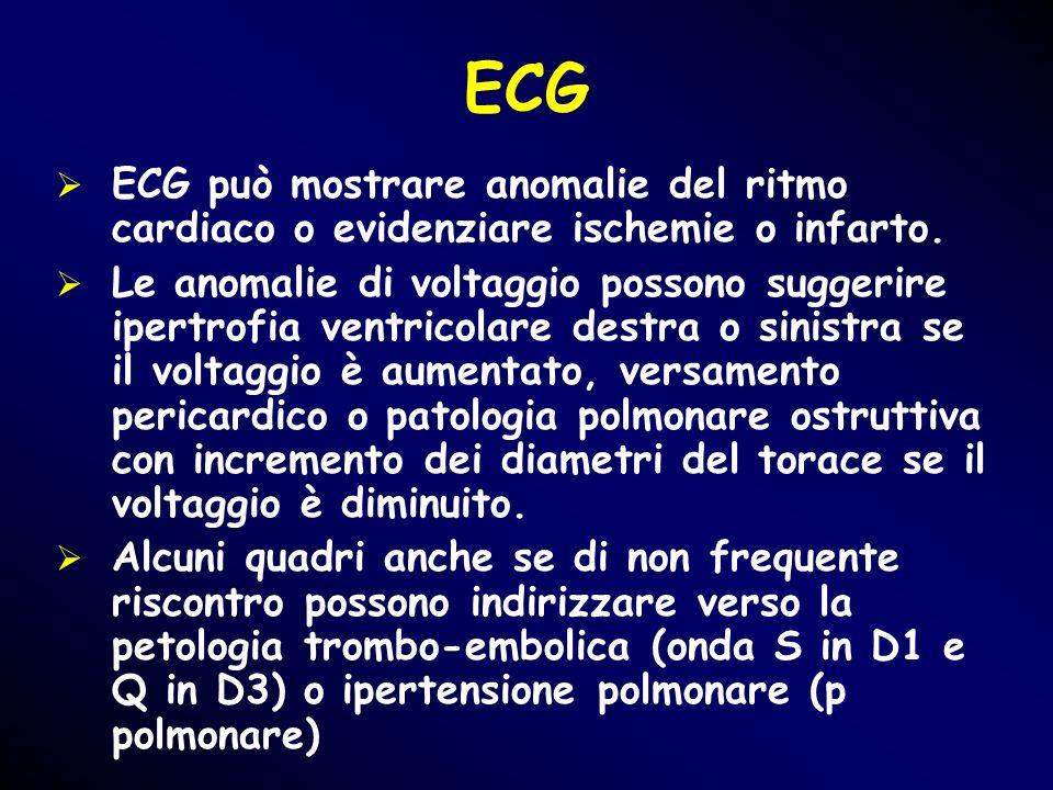 ECG ECG può mostrare anomalie del ritmo cardiaco o evidenziare ischemie o infarto. Le anomalie di voltaggio possono suggerire ipertrofia ventricolare