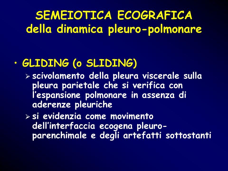 SEMEIOTICA ECOGRAFICA della dinamica pleuro-polmonare GLIDING (o SLIDING) scivolamento della pleura viscerale sulla pleura parietale che si verifica c