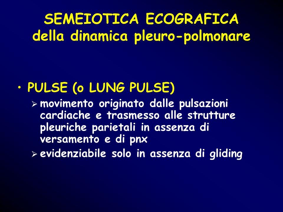 PULSE (o LUNG PULSE) movimento originato dalle pulsazioni cardiache e trasmesso alle strutture pleuriche parietali in assenza di versamento e di pnx e
