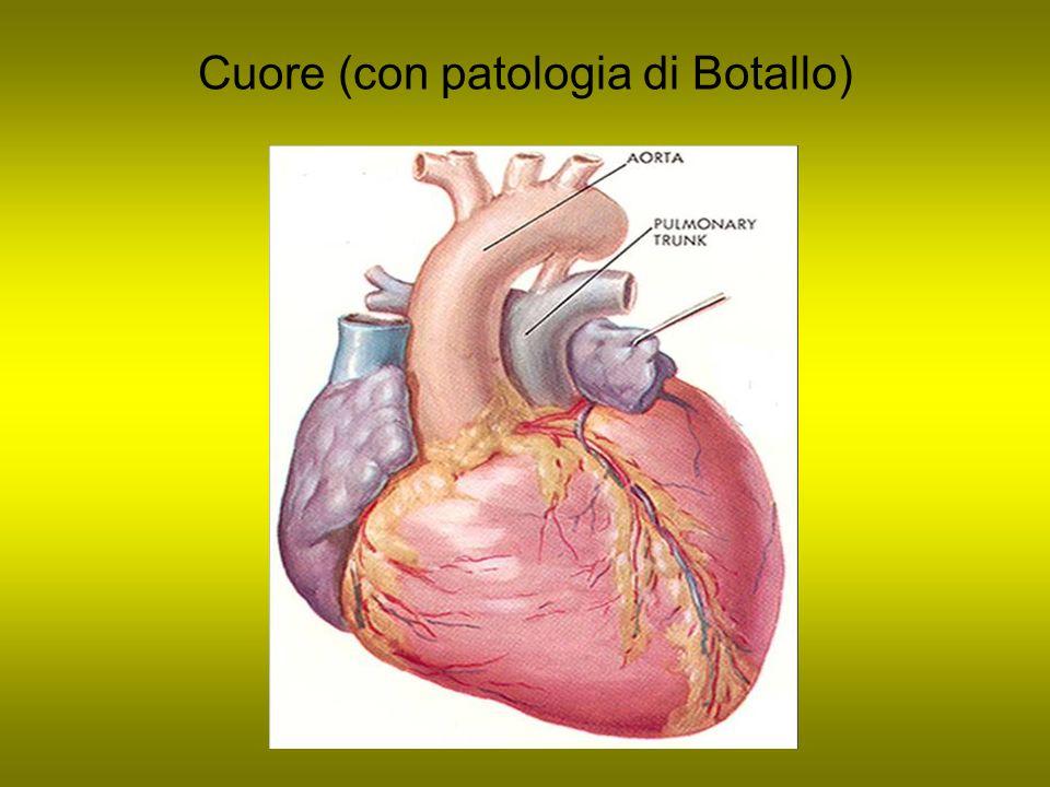 Cuore (con patologia di Botallo)