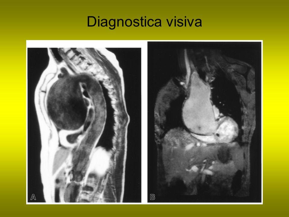 Diagnostica visiva