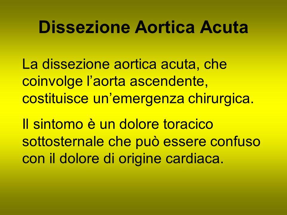 Dissezione Aortica Acuta La dissezione aortica acuta, che coinvolge laorta ascendente, costituisce unemergenza chirurgica. Il sintomo è un dolore tora
