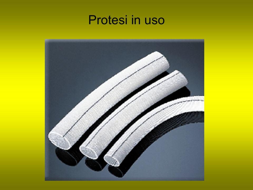Protesi in uso