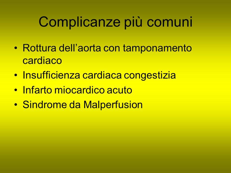 Complicanze più comuni Rottura dellaorta con tamponamento cardiaco Insufficienza cardiaca congestizia Infarto miocardico acuto Sindrome da Malperfusio