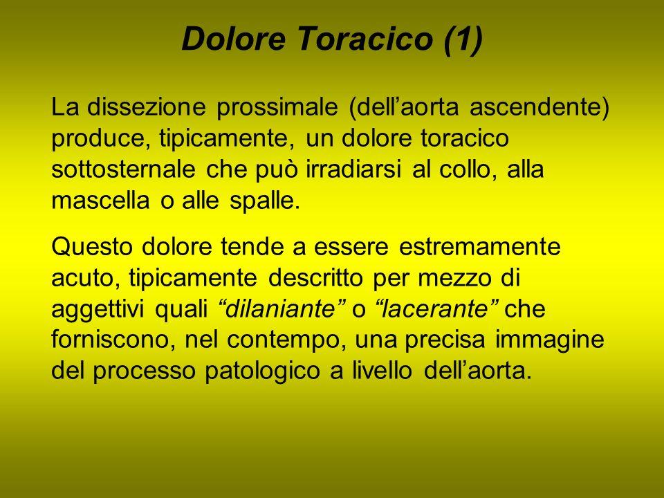 Dolore Toracico (1) La dissezione prossimale (dellaorta ascendente) produce, tipicamente, un dolore toracico sottosternale che può irradiarsi al collo