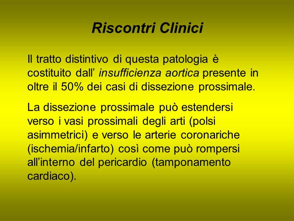 Riscontri Clinici Il tratto distintivo di questa patologia è costituito dall insufficienza aortica presente in oltre il 50% dei casi di dissezione pro