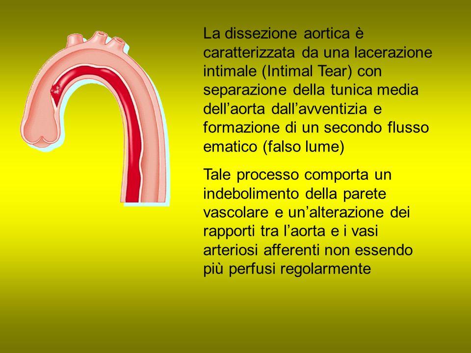 La dissezione aortica è caratterizzata da una lacerazione intimale (Intimal Tear) con separazione della tunica media dellaorta dallavventizia e formaz