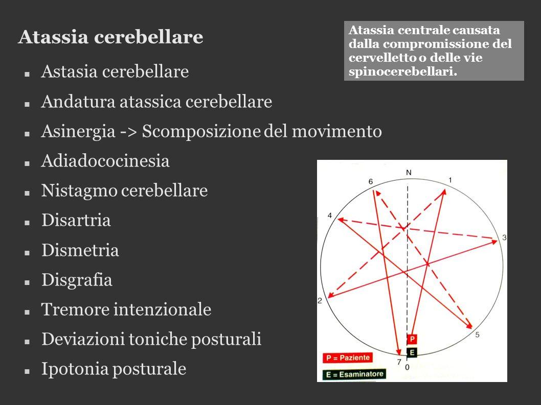 Atassia cerebellare Astasia cerebellare Andatura atassica cerebellare Asinergia -> Scomposizione del movimento Adiadococinesia Nistagmo cerebellare Di