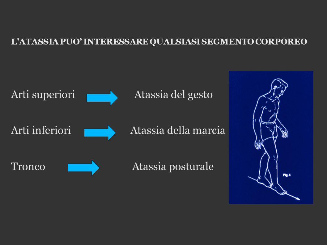 LATASSIA PUO INTERESSARE QUALSIASI SEGMENTO CORPOREO Arti superiori Atassia del gesto Arti inferiori Atassia della marcia Tronco Atassia posturale