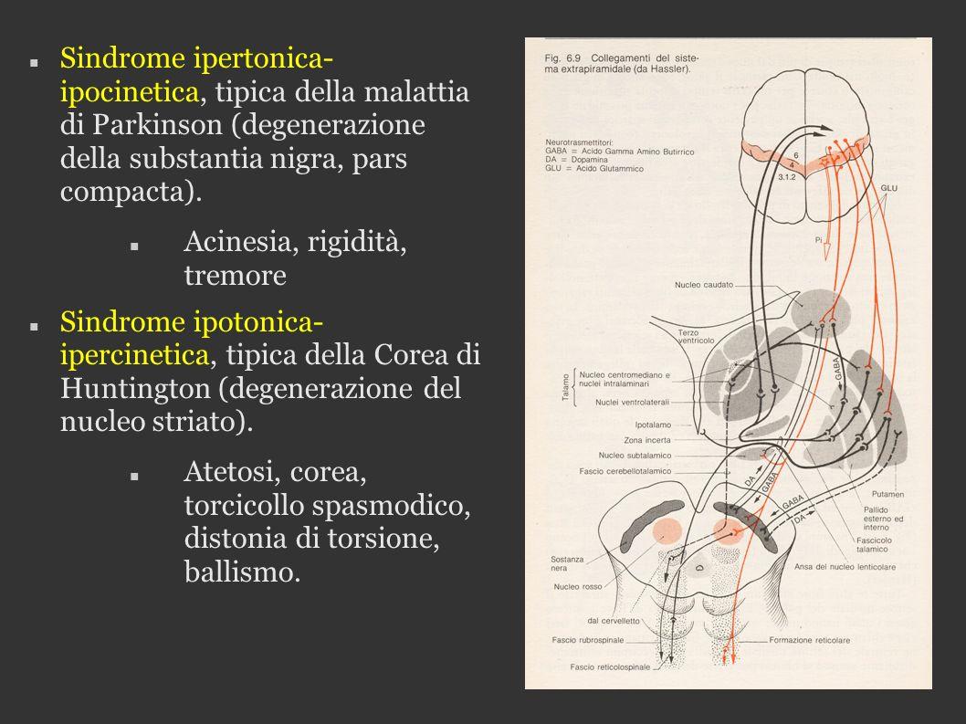 Sindrome ipertonica- ipocinetica, tipica della malattia di Parkinson (degenerazione della substantia nigra, pars compacta). Acinesia, rigidità, tremor