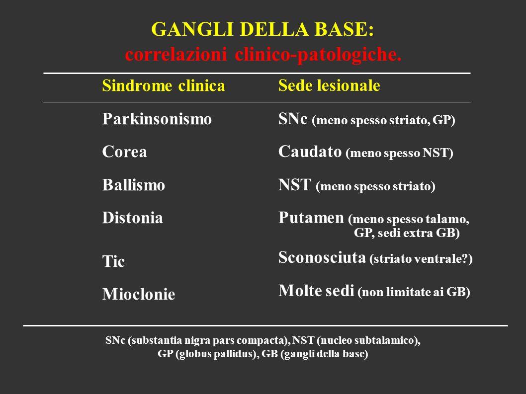 GANGLI DELLA BASE: correlazioni clinico-patologiche. Sindrome clinica Parkinsonismo Corea Ballismo Distonia Tic Mioclonie Sede lesionale SNc (meno spe