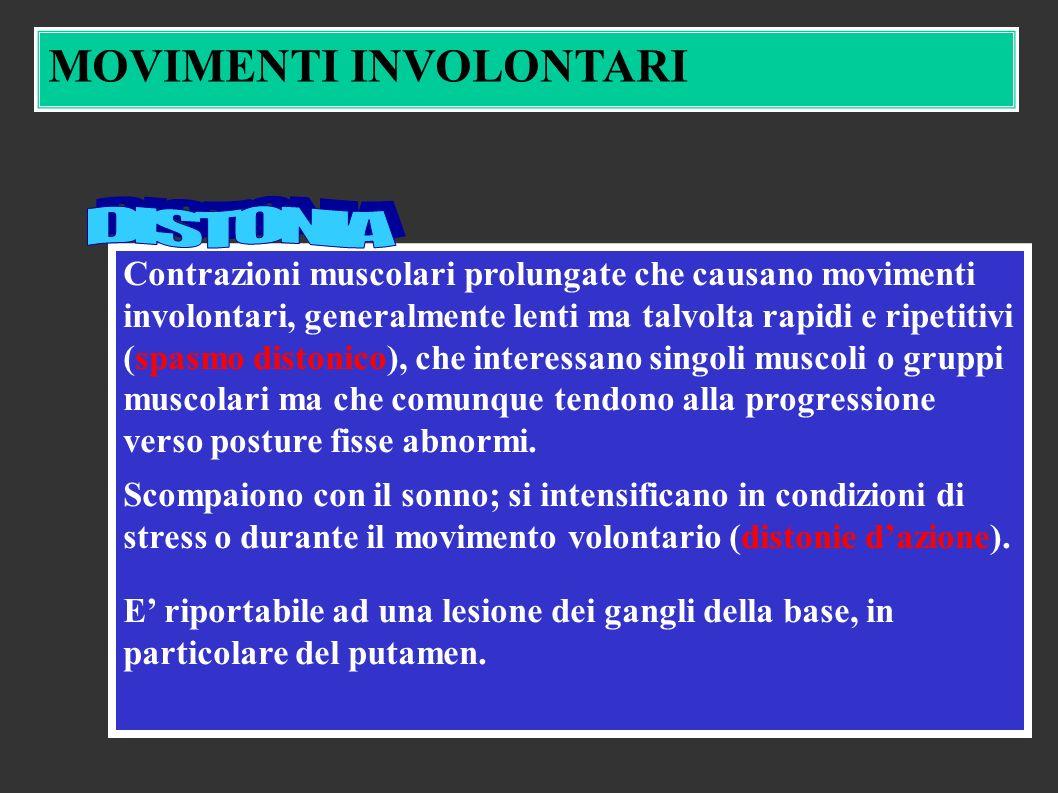 Contrazioni muscolari prolungate che causano movimenti involontari, generalmente lenti ma talvolta rapidi e ripetitivi (spasmo distonico), che interessano singoli muscoli o gruppi muscolari ma che comunque tendono alla progressione verso posture fisse abnormi.