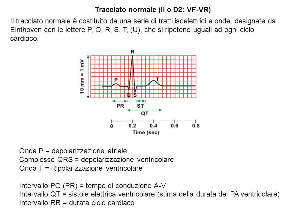 Corrispondenza delle diverse parti del tracciato ECG con lattività elettrica delle cellule cardiache appartenenti alle diverse regioni del cuore