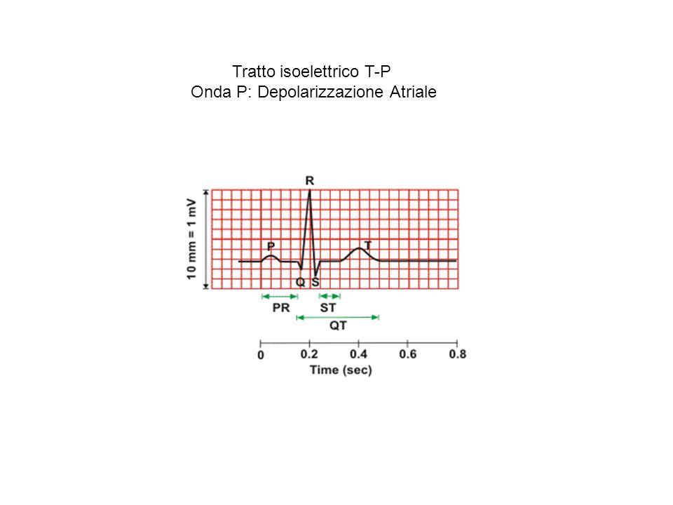 Vettore cardiaco nella depolarizzazione atriale