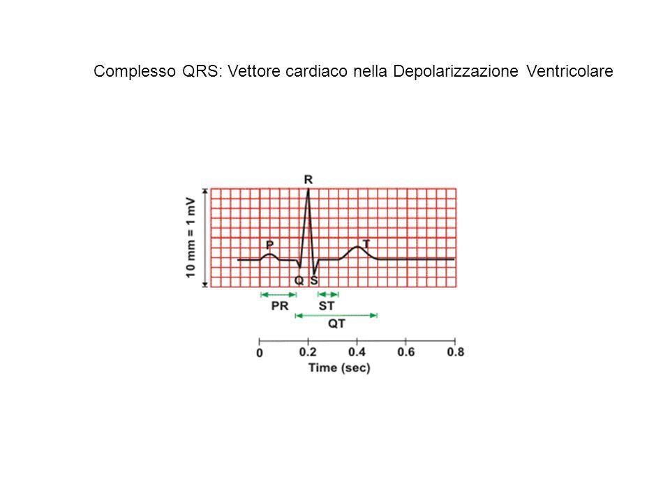 Ricostruzione del complesso QRS in II derivazione