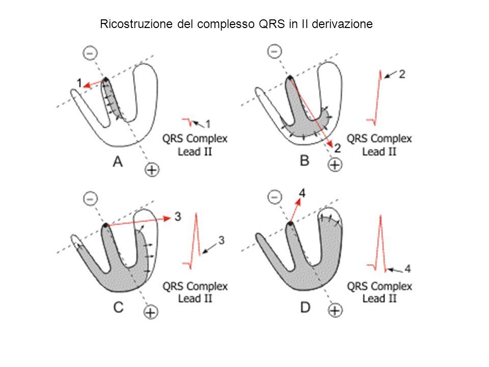 Ricostruzione del complesso QRS in I derivazione e in aVF