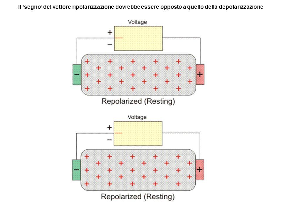 Il segno del vettore ripolarizzazione dovrebbe essere opposto a quello della depolarizzazione