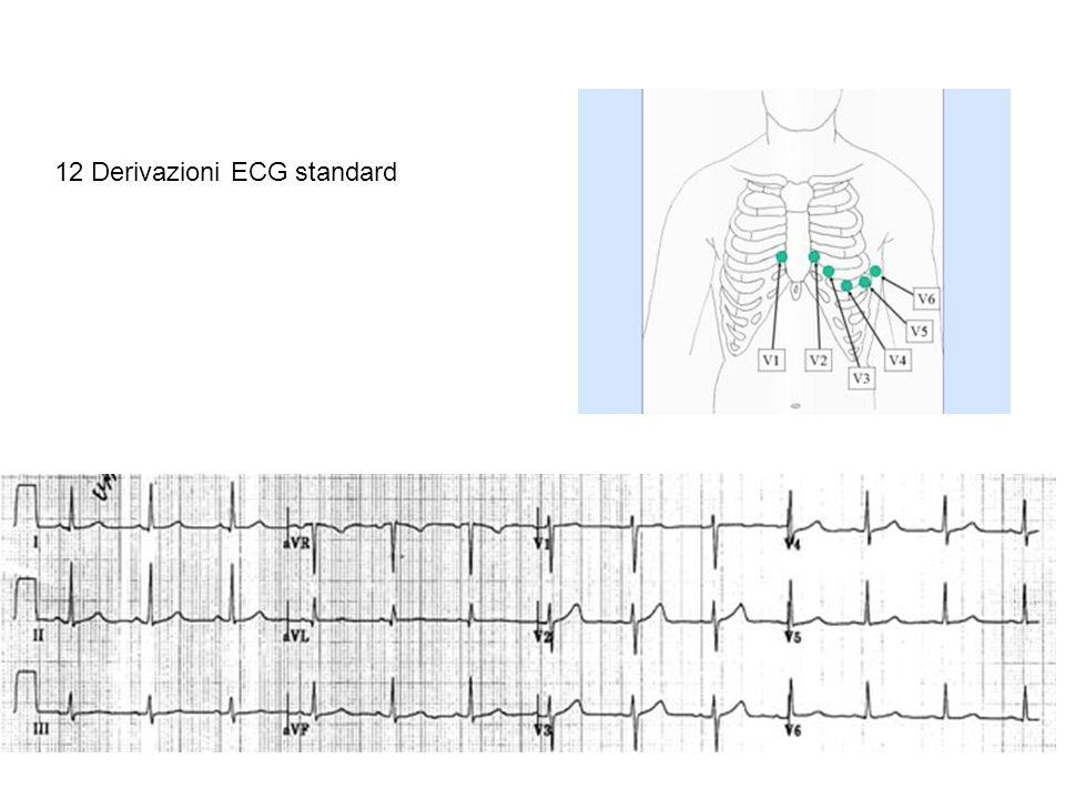 Utilità di un numero elevato di derivazioni Corrispondenza del tracciato con gli eventi meccanici del ciclo cardiaco Considerazioni su alcuni esempi di tracciato