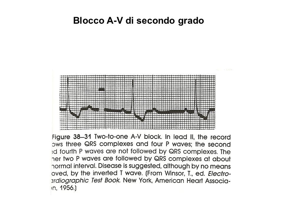 Blocco A-V completo (terzo grado)