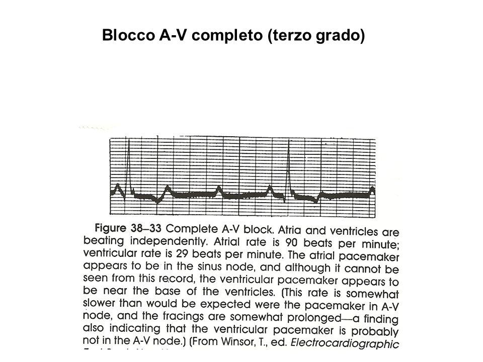 Arresto sinusale da iperstimolazione vagale e sfuggita vagale (vagal escape) grazie allentrata in funzione di un pace-maker latente ventricolare.