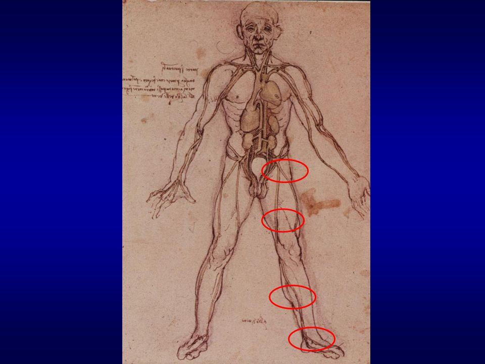 Incidence of saphenous nerve injury : partial vs complete LSV stripping 7% vs 39% [Sam RC, Silverman SH, Bradbury AW Eur J Vasc Endovasc Surg 2004; 27: 113-20] REVIEW.