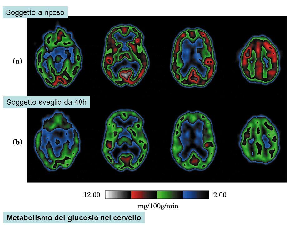 Metabolismo del glucosio nel cervello Soggetto a riposo Soggetto sveglio da 48h