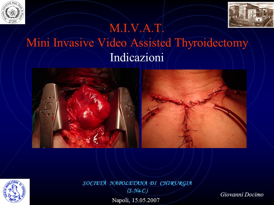M.I.V.A.T. Mini Invasive Video Assisted Thyroidectomy Indicazioni SOCIETÀ NAPOLETANA DI CHIRURGIA (S.Na.C.) Napoli, 15.05.2007 Giovanni Docimo