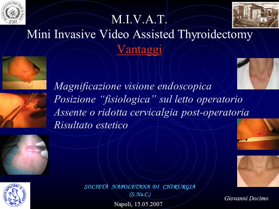 M.I.V.A.T. Mini Invasive Video Assisted Thyroidectomy Vantaggi SOCIETÀ NAPOLETANA DI CHIRURGIA (S.Na.C.) Napoli, 15.05.2007 Giovanni Docimo Magnificaz